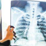 Pandemi, Temuan Kasus TB Tanah Air Merosot Tajam